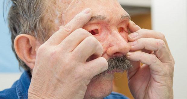 Prosthetics 3D-printed-face